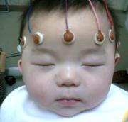 赤ちゃんの記録。 潜因性点頭てんかんTOのんびり予後