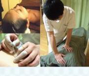 アーキュポイント 町田マッサージあん摩指圧 鍼灸