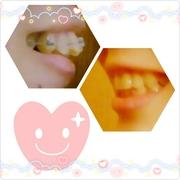 前歯一本抜歯による歯列矯正記録
