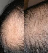 カークランド製発毛剤のミノキシジル5%配合の効果
