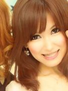 顎変形症〜歯列矯正・外科手術〜闘病記