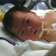 高齢出産に挑戦した夫婦のダウン症児子育て日記