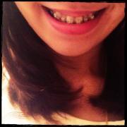 ♪23歳からの非抜歯 歯列矯正♪