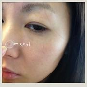 美容医療でアンチエイジングを実践アンナのブログ