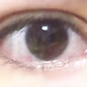 眼瞼下垂ブログ