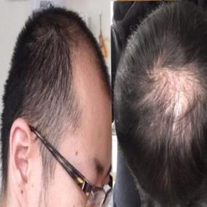 自毛植毛とAGA治療薬で薄毛に挑む~あっくんのハゲ活日記~