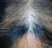 AGAでハゲたくない育毛法のブログ