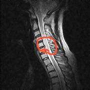 頚椎ヘルニア体験記 首ヘルニアと上手に付きおう