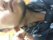 首のしこり   側頸嚢胞〜癌 闘病記