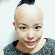 生まれたときから脱毛症❤︎ぴろみのブログ「私が私に戻る場所」