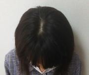 抜け毛が多く髪の毛が薄くなってきた女性は必見です