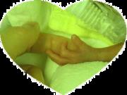 胎胞脱出から無事出産したママと超未熟児の記録