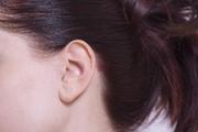 極肌主義|敏感肌の30代に人気の化粧水を口コミ