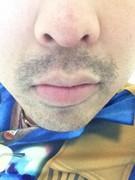 ゴリラクリニックの髭脱毛体験ブログ