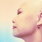 汎発型脱毛症・悪性リンパ腫しょこの治療記