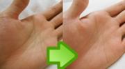手汗をピタッと止める方法をまとめました!