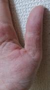 手湿疹歴24年の私が手湿疹を治すブログ