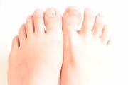 爪水虫(爪白癬)は市販薬で完治出来る?