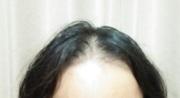 薄毛やハゲを治すために必要なケアを探すブログ