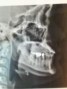 アラサー女の顎変形症治療の記録