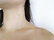 老人性イボの原因は?皮膚科治療より自宅ケアが効果的