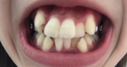23歳から始める歯列矯正