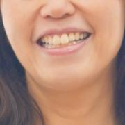 矯正歯科医の妻のブログ