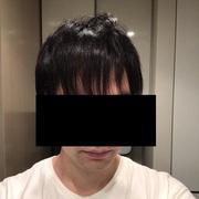 アイランドタワークリニックで自毛植毛してきました