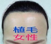 30代女性の本音!韓国植毛の真実 [JP毛髪移