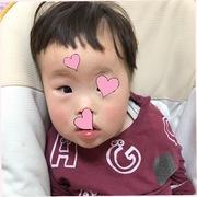 ダウン症・ウエスト症候群闘病日記☆コボちゃん