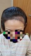 40歳女子♡韓国でヘアライン植毛