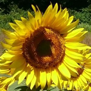 太陽からひまわりへ~腎移植:命のたすき