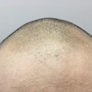 グローバルヘアー社提携 韓国モーションクリニックにて植毛