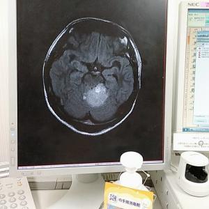 脳腫瘍を患った僕