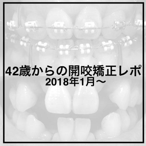 櫻田こずえの健康ノート〜開咬矯正記録:2018年42歳で開始〜