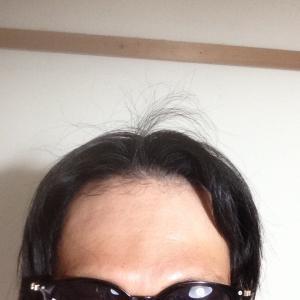韓国の自毛植毛挑戦日記(M字ハゲ.2600株.global hair.AGE四十路おじさん)