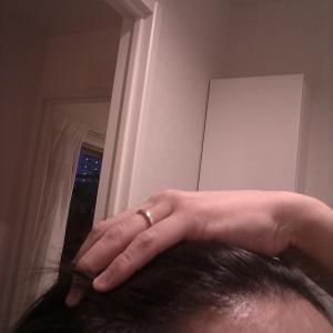 AGA保健室 カッパ先生と学ぶ発毛・育毛のすべて