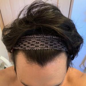28才韓国自毛植毛(グローバルヘア・M字・1600株)