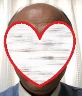 薄毛放置歴30年の61歳が発毛した薄毛治療法