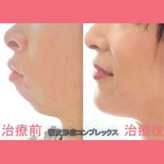 顎変形症コンプレックス