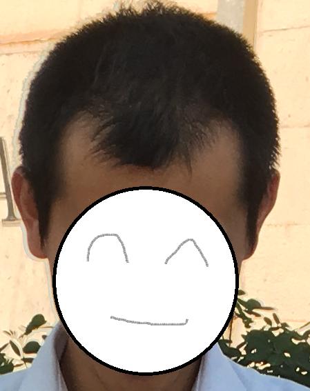 transplanted_hairさんのプロフィール