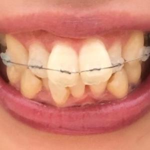 40代で歯科矯正を始めた、転妻ぷにょのブログ