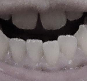 はらぐろの顎変形症治療のブログ