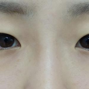 『韓流目頭切開』で明るい目元へ