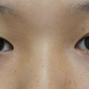 『全切開二重術』+『韓流目頭切開』で目ヂカラ大幅アップ