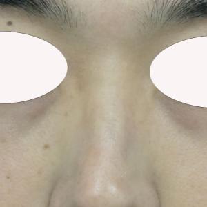 『目の下のクマ治療』で若々しさを取り戻す