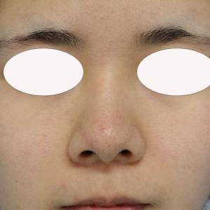 美しく、かつ自然な鼻を目指す『鼻複合手術』