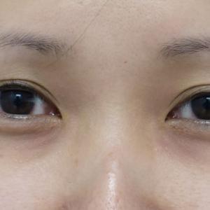 『経結膜下眼瞼下制術(切るたれ目術)』で優しい印象に