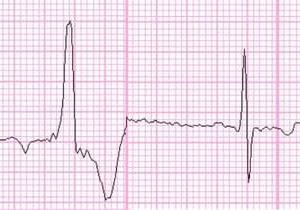 心電図のお勉強