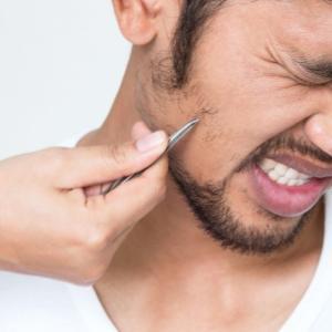 髭抜きは肌荒れを引き起こす!?その危険性や正しい処理方法を解説